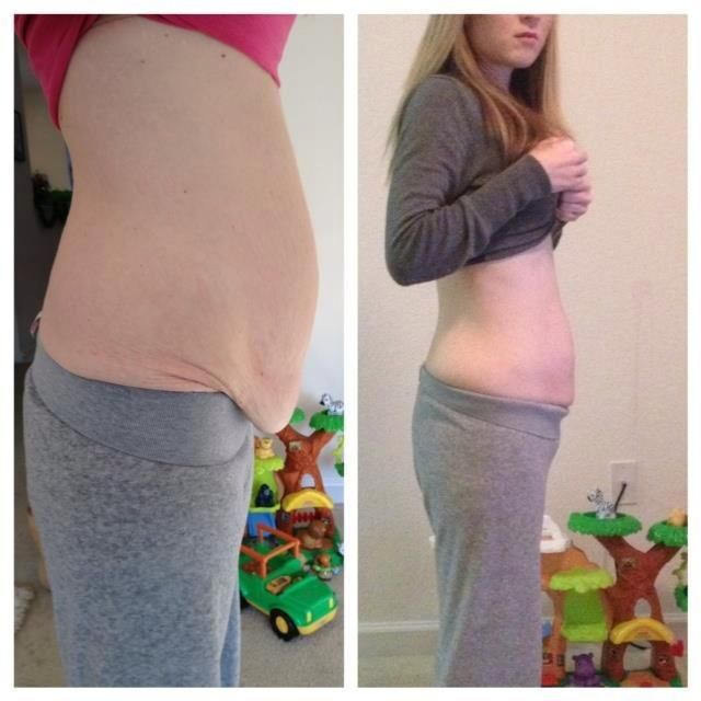Skinny Teens And Gastric 115