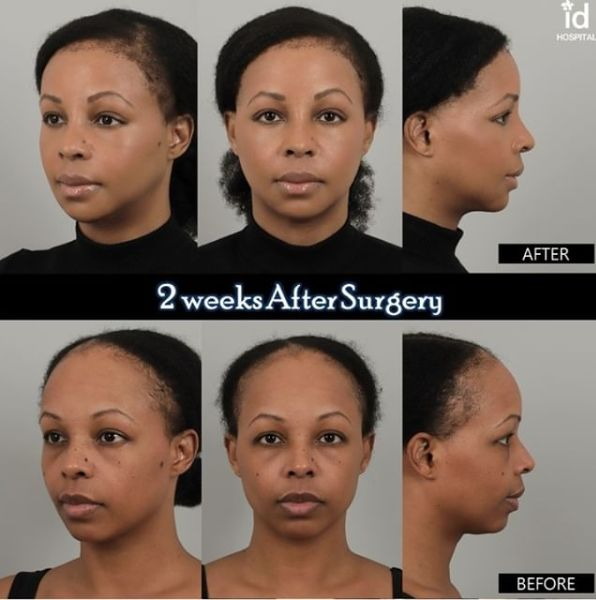 2 weeks difference with plastic surgery