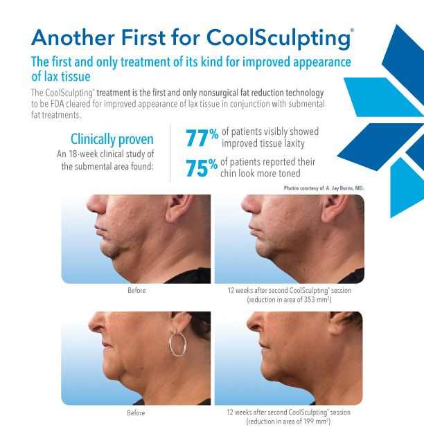 As if it couldn't get any better, #CoolSculpting is now FDA approved to improve the appearance loose #skin AND reduce double chin #fat! Win win!! Call to book your #coolmini consultation today! https://www.chicagodermatology.com/body-shaping/cool-sculpting-for-chin/  #doublechin #fatloss #turkeyneck #tighten #fatreduction #doublechinremoval #cosmetic #aesthetics #chicago #chicagodermatology #ccsd #rivernorth #goldcoast #lincolnpark #lak…