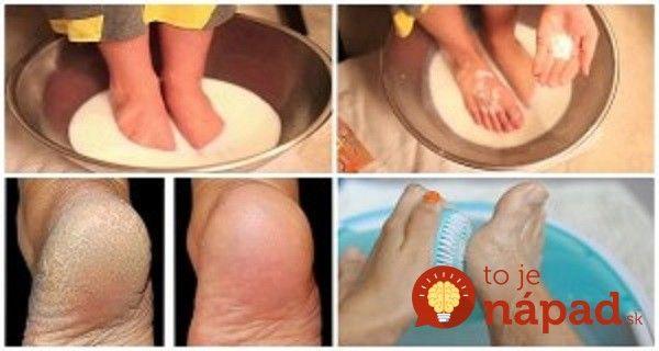 Popraskaná a zhrubnutá koža na nohách? Nepotrebujete drahé prípravky z obchodu, stačia 2 prísady z kuchyne!