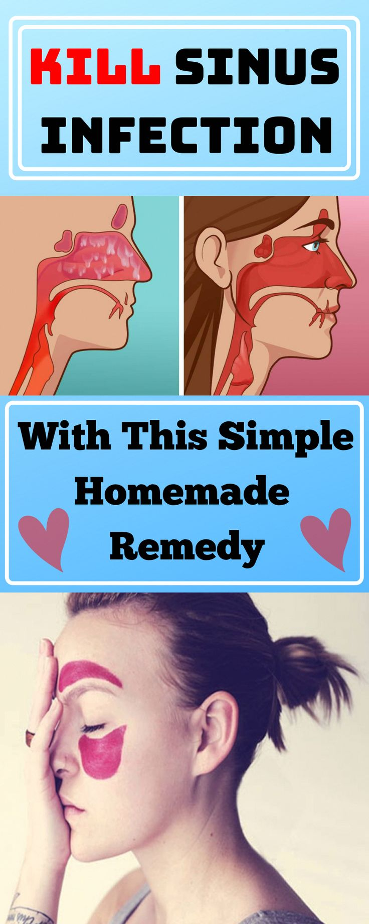 Kill sinus infection and stay healthy all the winter time