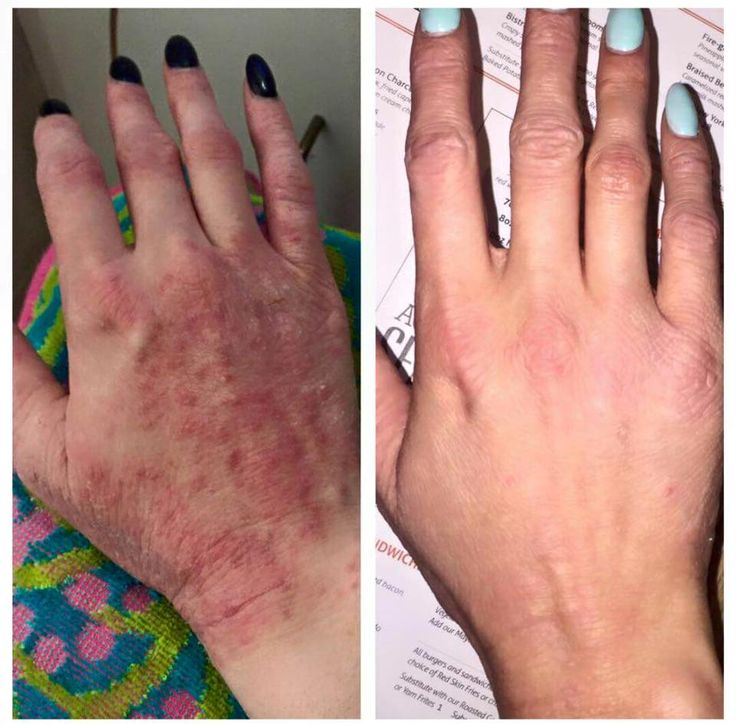 Melanie from Ontario, Canada before/after shot after rolling Skincerity on her hand for 2 weeks.  She saw improvement after her first application.  mynucerity.biz/suzannevincent  https://www.facebook.com/SuzannesSkinMagic
