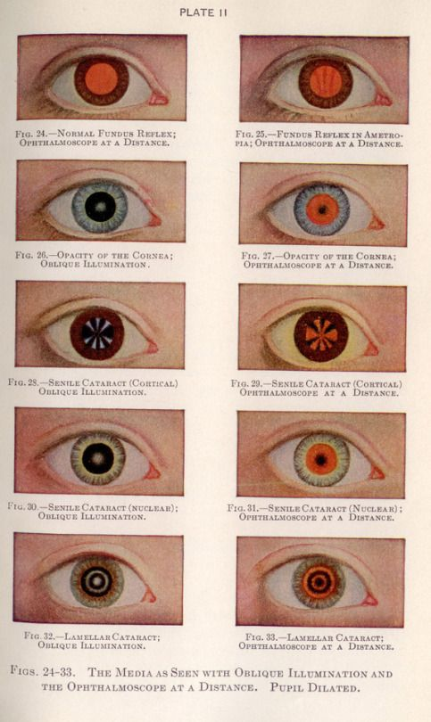 Manual of the diseases of the eye
