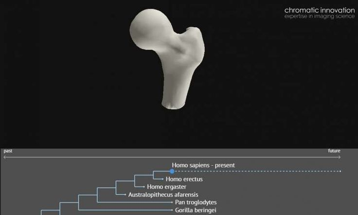 Interactive 3D models of human joints, showing how common medical complaints have arisen & how we're likely to evolve, have been created at Oxford. Researchers made 3D models compiling 128 slice CT scans of bones from humans, early hominids, primates & dinosaurs. In scanning 224 specimens, spanning 350million yrs from the Devonian to modern day
