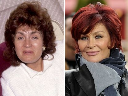 """Sharon Osbourne has admitted that she has gone too far with plastic surgery! The rock wife, who looks like an entirely different person than she did before, has admitted to getting several cosmetic procedures done to her face and body, including breast implants, a face lift and a leg lift. """"Everything!"""" Osbourne bragged to Anderson Cooper when he recently asked her what she'd had done over the years. """"There's not one thing I haven't had lifted, cut or sewn back on."""""""