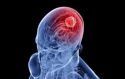 Tumore al cervello: quali sono i sintomi? - Quali sono i sintomi del tumore al cervello? A seconda dell'area in cui sono collocati e della loro tipologia, possono essere molto diversi tra di loro. Vi spieghiamo quali sono.