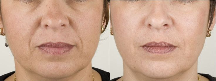 Patient before / after images, Dr Q is an expert in Aesthetics / Cosmetic Treatments. Our clinic is in Glasgow City Centre, book an appointment today.
