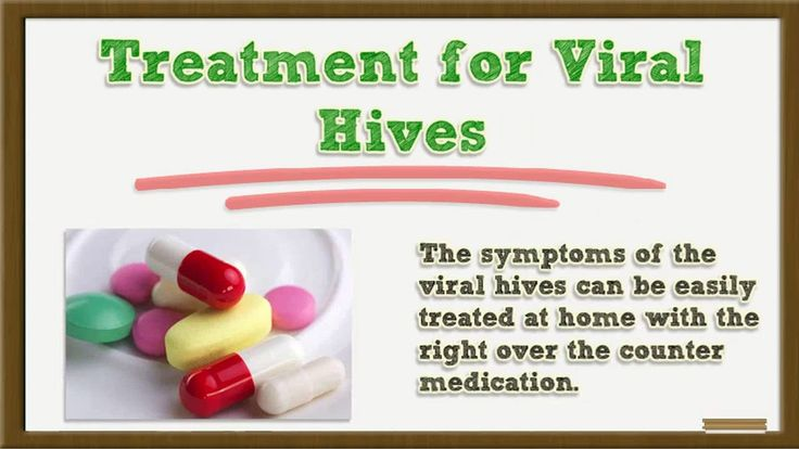 Viral Hives - Viral Hives Images - Viral Hives Treatment - Viral - food poisoning duration