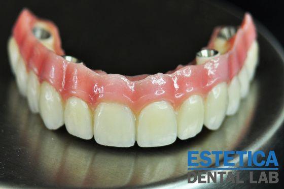 http://esteticadentallab.com/blog/all-on-4/ - Dental Implants All on 4, All on 4 Dental Implants, All on 4 Dental Implants Cost, All on Four Dental Implants, All on Four Dental Implants Cost, Digital implants all on UK, All on  dental implants UK, All on  dental implants cost UK, All on four dental implants UK, All on four dental implants cost UK, All on 4 Dental Implants UK, All on 4 Dental Implants London, All on Four Dental Implants Cost London, All on 4 Dental Implants Cost UK