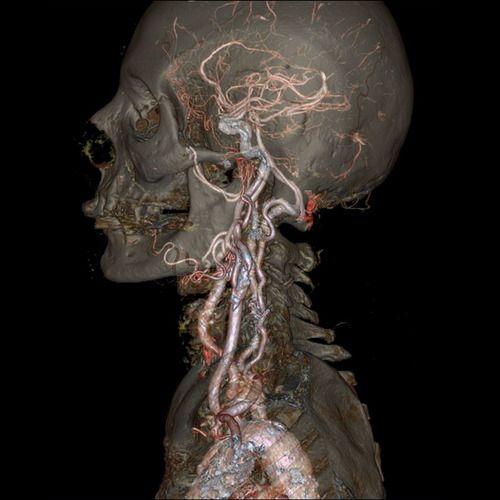Czaszka i tętnica szyjna wspólna. Fot. GE Healthcare