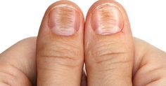 Warnings Signs Your Fingernails May Be Sending (vertical ridges = amino acid deficiency, diet is low in protein or weak digestive juices. Making sure to get enough easy to digest protein is key. White spots on nails = low zinc status (and low stomach acid ). A zinc deficiency doesn't mean you need a zinc supplement, but more a sign of a poor diet and/or weak digestive juices due to slowed metabolism).