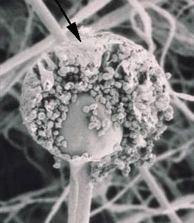 sporangium (pl. sporangia): saclike fungal structure in which the entire contents are converted into an indefinite number of asexual spores (SEM of Rhizopus stolonifer)
