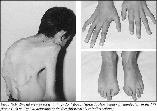 16 best images about Fibrodysplasia Ossificans Progressiva ...
