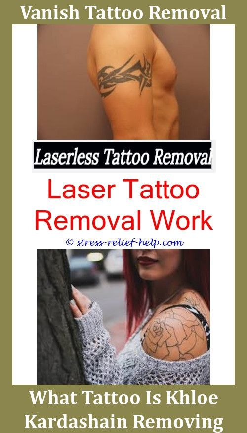 Laser Tattoo Removal Near Me Tattoo Removal West Palm Beach Is Laser ...