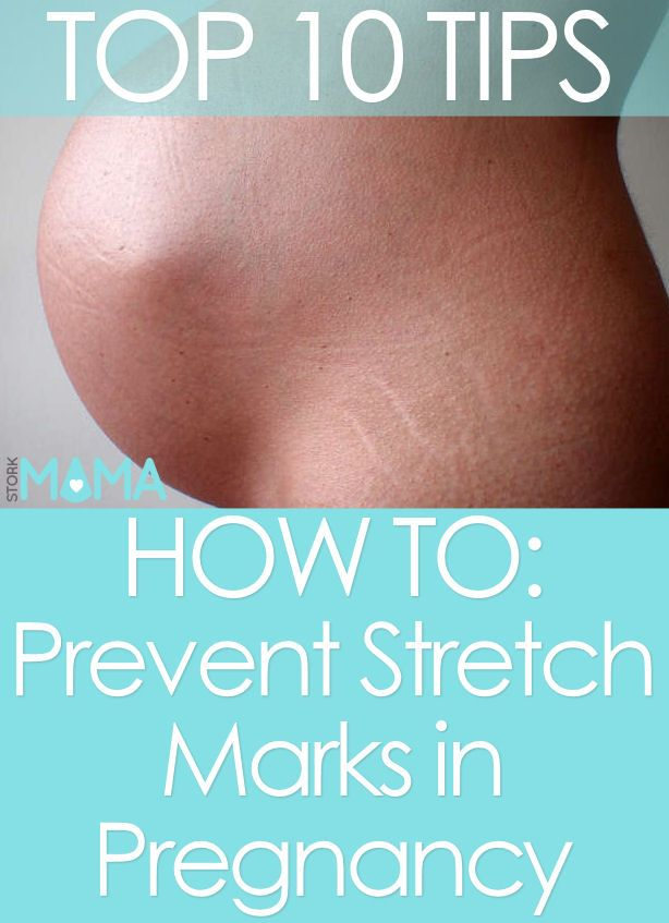 How to prevent stretch marks in pregnancy.Click to read our top tips for preventing stretch marks during pregnancy. Everyday advice for pregnant moms. Stork Mama