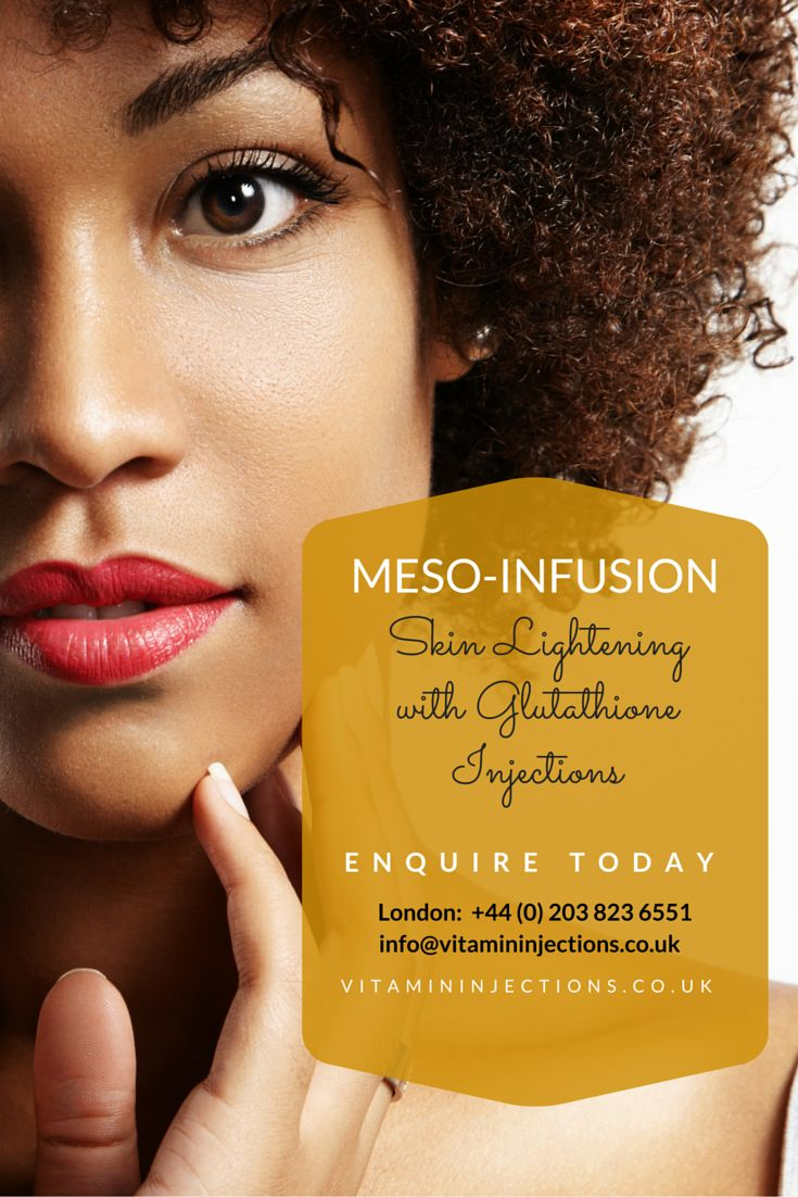 Meso-Infusion Skin Lightening with glutathione injections involve the direct, intravenous (IV) delivery of glutathione and vitamin C into the bloodstream. Regular injections speed up skin cell turnover and generate permanent and long-lasting skin lightening results. All Glutathione injections in London are carried out by our IV/IM specialist Bianca Estelle, a highly qualified Skin Specialist with a special interest in #ethnic #dermatology. #skinlightening #skincare #beauty