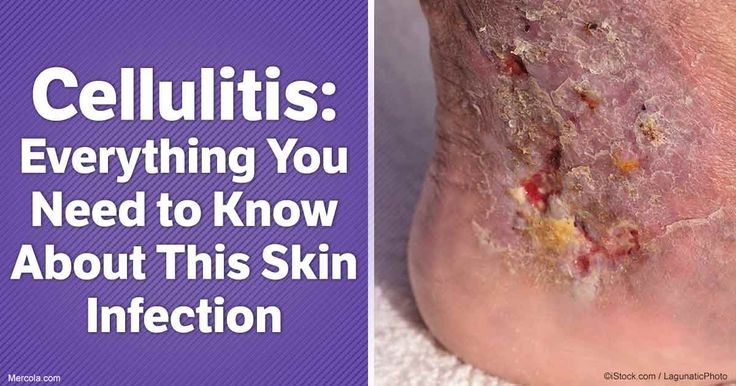 What exactly is cellulitis, and how do you become predisposed to this illness? Read on to find out. http://articles.mercola.com/cellulitis.aspx