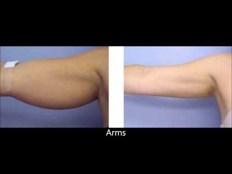 For more info on super wet liposuction have a look here: http://www.lipoadvisor.com/super-wet-liposuction/      Notice: The photos in this video ARE NOT OUR PROPERTY