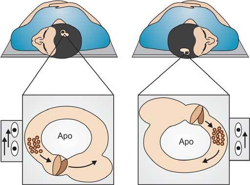 Apogeotropic LSC BPPV pathophysiology, right side