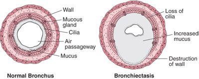 Bronchiectasis is an irreversible widening (dilation) of portions of the breathing tubes or airways (bronchi) resulting from damage to the airway wall.        The most common cause is severe or repeated respiratory infections.      Most people develop a chronic cough, and some also cough up blood and have chest pain and recurrent episodes of pneumonia.      Chest x-rays are usually done to determine the extent and severity of the disorder.      People usually take antibiotics and drugs to…