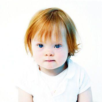 The Upside of Down Syndrome.  (Photo in book 'De Upside van Down' of Eva Snoijink)