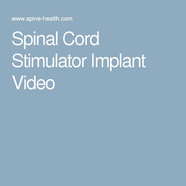 Spinal Cord Stimulator Implant Video