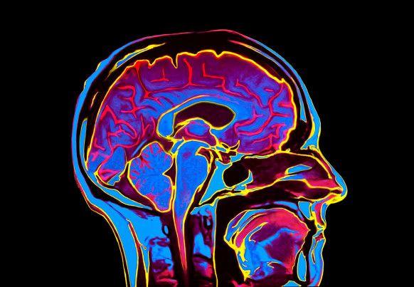 MRI Scan of human head