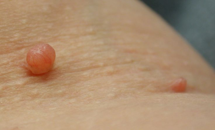 Skin tags are caused due to the accumulation of blood vessels and collagen in the thicker parts of the skin. Scientifically, skin tags are called as achrochordon. These fleshy outgrowths are very small in size and appear deformed in shape. They usually occur on eyelids, neck, arms, lower part of the breast, and armpits. Skin tags can occur [...]