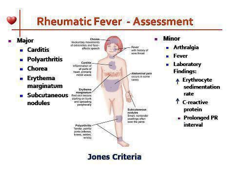 RHEUMATIC FEVER ---- JONES CRITERIA ◬