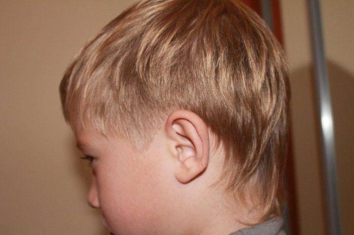 وجود ورم خلف الأذن عند الأطفال الرضع موسوعة Kids Health Ear Health