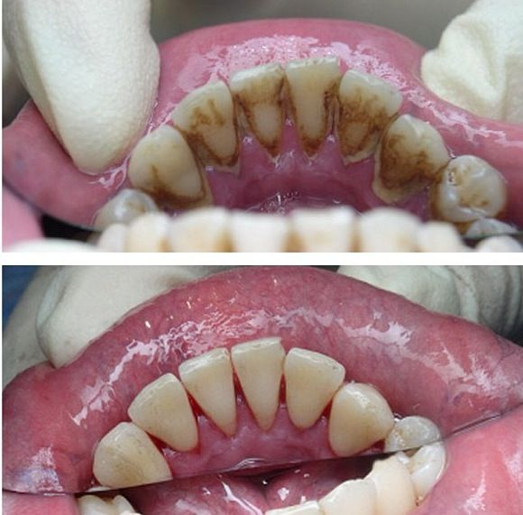 I love the before and after when the patient's get a deep cleaning.