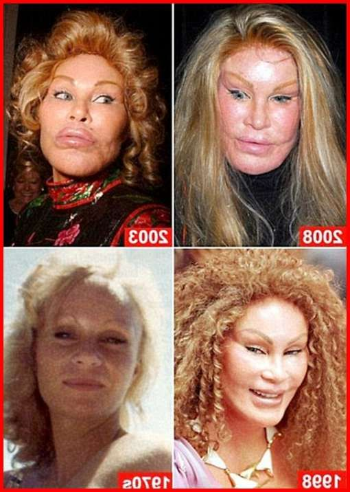 Cat Lady Plastic Surgery