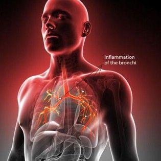 La bronchiteaiguë est une maladie très fréquente et bénigne qui survient surtout en automne et en hiver. Qu'est ce que c'est?: C'est une inflammationaiguë (dure moins de trois semaines) des bronches, le plus souvent virale et donc contagieuse. Quels sont les symptômes?: La bronchite aiguë est souvent précédée par un rhume ou une grippe, puis …