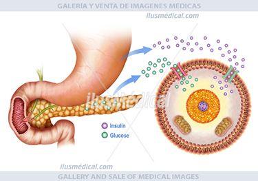 Ilustración regulación de glucosa en sangre. La glucosa es azúcar, un carbohidrato que es encontrado en ....