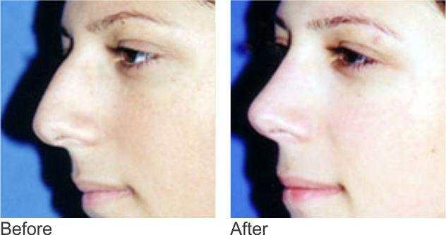 Nose Reshaping   Nose Surgery Dubai   Nose job Rhinoplasty