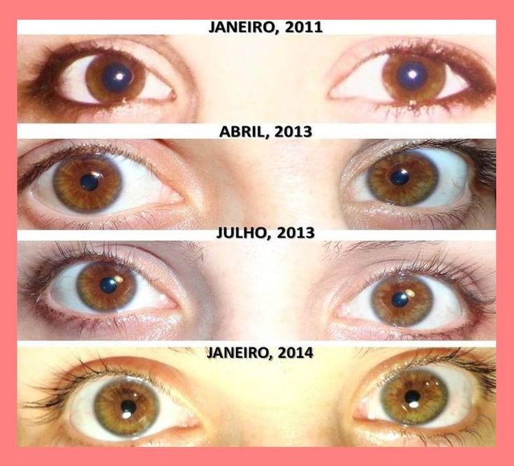Ways To Change Your Eye Color Naturally