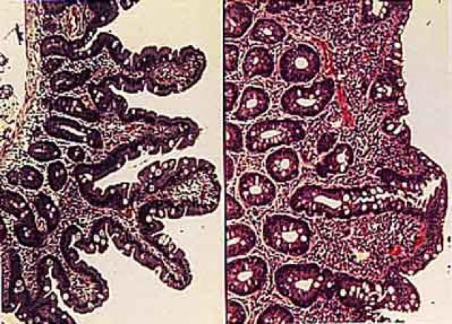The Process for Getting a Celiac Disease Diagnosis : Figure 1. Microscope views of tissues taken from the small intestine by biopsy. At left are normal villi (fingerlike projections extending from the surface). At right, in tissue from a celiac patient, the villi have flattened and disappeared.