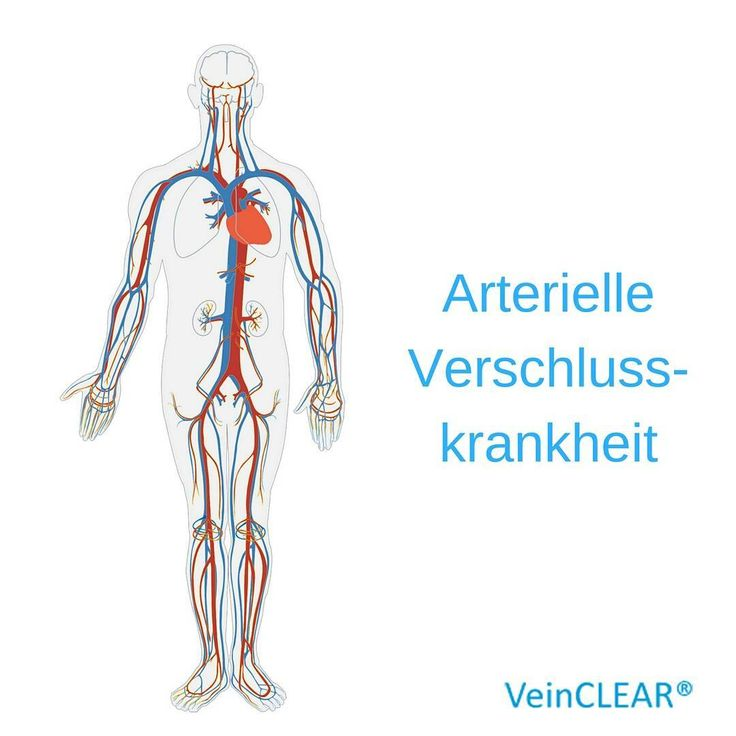 """Was ist die """"arterielle Verschlusskrankheit""""?  #venen #arterien #blut #blutkreislauf #kreislauf #krankheit #erkrankung #therapie #op #alt #raucher #gesundheit #health #gesund #fit #risiko #ernährung #krampfadern #besenreißer #adern #veins #sport #vererbung #genetik #medizin #arzt"""