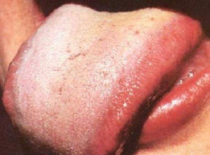 Определение болезни по языку