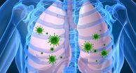 Patients with advancing COPD are both more susceptible to pneumonia and more difficult to treat. Learn why prompt medical attention is key.