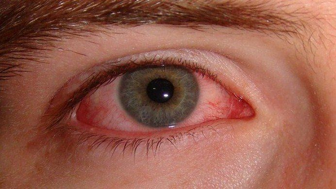 10 Natural Home Remedies For Burning Eyes From Allergies With