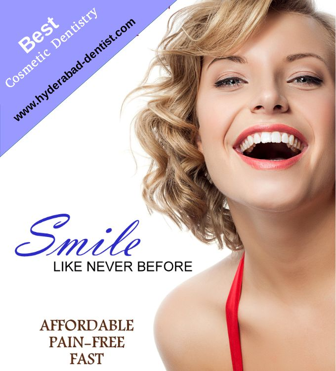High quality #cosmetic #dental services such as #teeth #whitening, porcelain veneer, teeth bonding, sosmetic repositioning, smile correction etc are available in Vijay Multispeciality Dental Hospital Hyderabad at low rates More information and Appointment Contact us http://hyderabad-dentist.com/cosmetic-dentistry.php