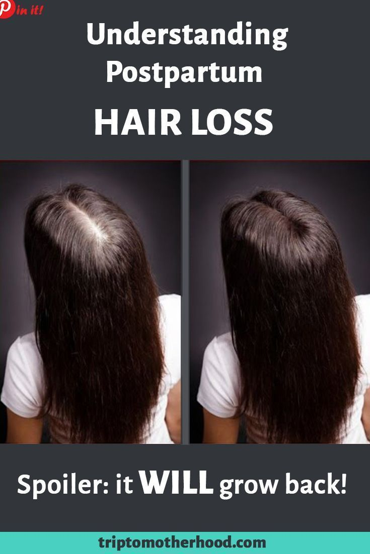 loss of hair avoidance female natural remedy, All-natural solutions to  prevent hair loss and also advertise hair growth (2020) | Postpartum hair  loss, Hair loss, Stop hair loss