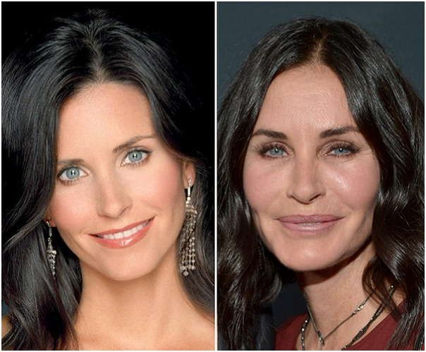 Courteney Cox Plastic Surgery Before Amp After Many Anti
