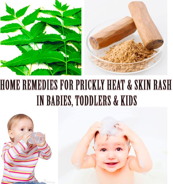 Maha - My Life: Home Remedies for Prickly Heat Rash on Babies - He...