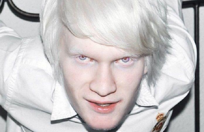 Почему на фото у людей альбиносов красные глаза