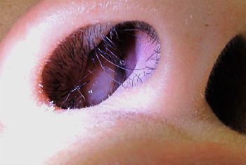 Nasal Polyps - Comprehensive overview covers Causes, Symptoms and its Homeopathic Treatment.