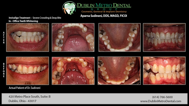 Pin by Dublin Metro Dental Group on Before & After