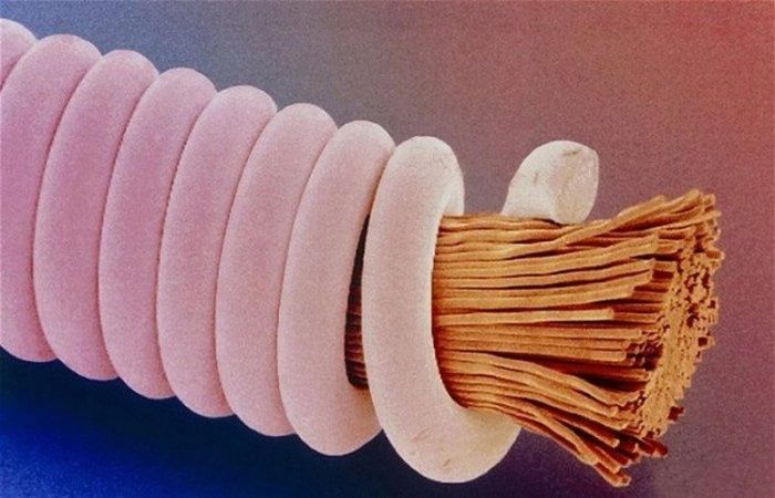 Удивительные снимки, сделанные под микроскопом (10 фото)