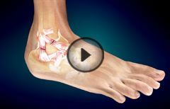 Ankle Sprain or Twisted Ankle: Grading, Causes, Symptoms, Treatment